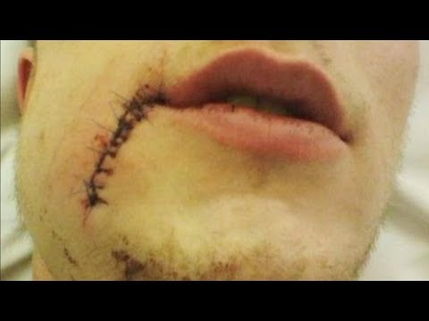 Injury - HC Plzen forward Tomas Pitule will do anything for his team, including blocking shots. Unfortunately his will an passion to win resulted in 78 stitches, 60 i...