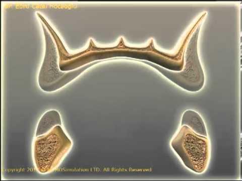 Dişsiz çenelerde kemik erimesi nasıl oluşur?