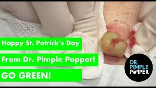 Happy St Patrick's Day from Dr Pimple Popper! Go GREEN!