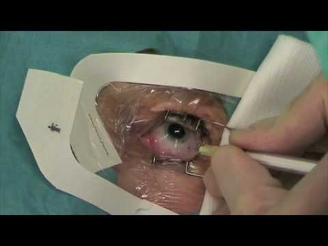 Intravitreal eye injection
