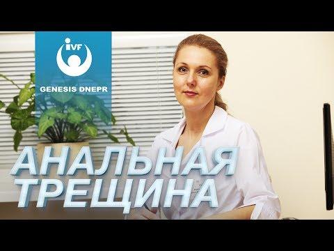 Анальная Трещина. Рябчинская Ольга. Генезис Днепр
