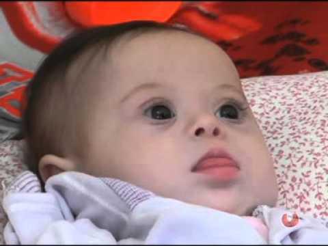 Watch videoPotencialidades das pessoas com síndrome de Down