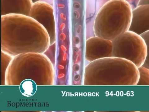 LPG массаж. Ульяновск Доктор Борменталь