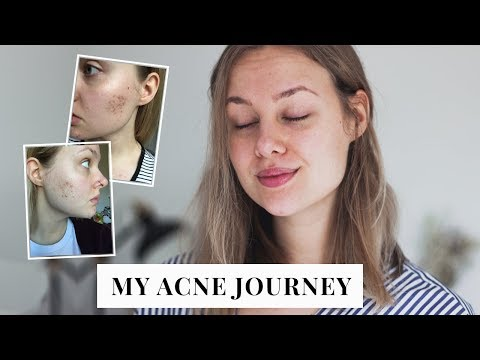 HOW I CLEARED MY ACNE + NATURAL SKINCARE ROUTINE | ☾ Sarah Witpeerd ☼