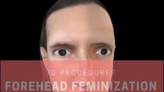 Video Forehead Feminization in 3-D FFS SURGERY | FACIALTEAM MP3, 3GP, MP4, WEBM, AVI, FLV September 2018