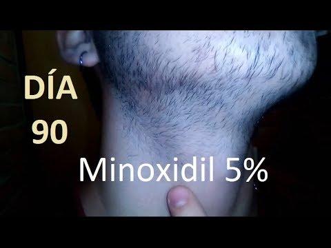 MINOXIDIL para la barba! día 90