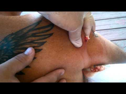 DIY At Home Cyst Extraction
