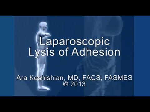 Laparoscopic Lysis of Adhesion