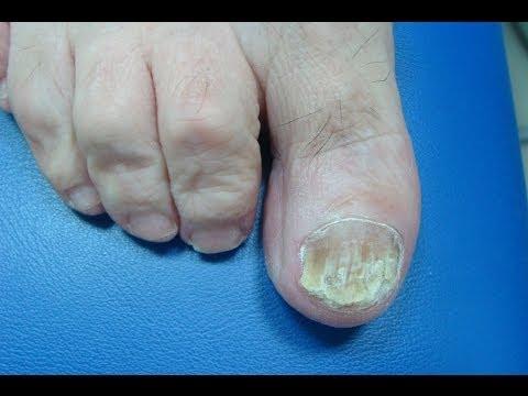 Las grietas sobre las uñas de las manos el tratamiento por el barniz medicinal