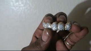 My New Diamond Grillz