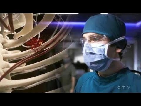 The Good Doctor Episode 1x08 Shaun Murphy Shows His Special Skills || The Good Doctor Scenes
