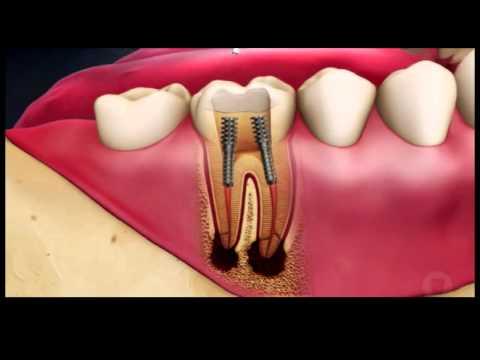 Лечение пульпита и периодонтита с дальнейшей реставрацией зуба