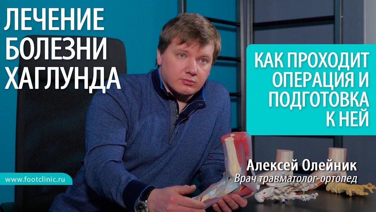 Как проходит операция при удалении шишки на пятке - хирургия стопы Алексея Олейника