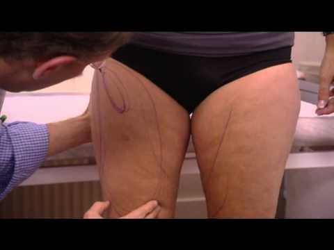 Liposuctie bij Bergman Clinics bij dokter s. Maas