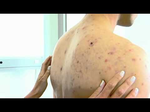 Acne NYC - (212) 644-6454 - NYC Cystic Acne Back - Pimples NYC - Acne Face NYC