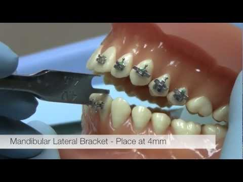 American Orthodontics Alexander LTS Brackets -- Bracket Placement Video (видео)