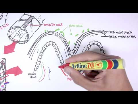 Anatomy and Physiology of Colon and Colon Cancer