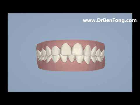 Invisalign Results for Ha D.| Before & After | www.invisalignresults.ca