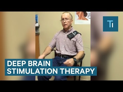 This Device Instantly Calms Symptoms of Parkinson's Disease