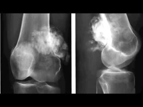 Патология бедренной кости