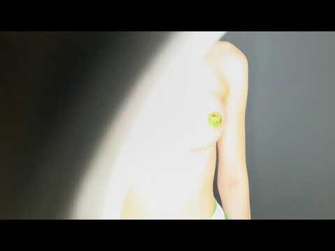 Увеличение груди анатомическими имплантами ДО/ПОСЛЕ. Маммопластика