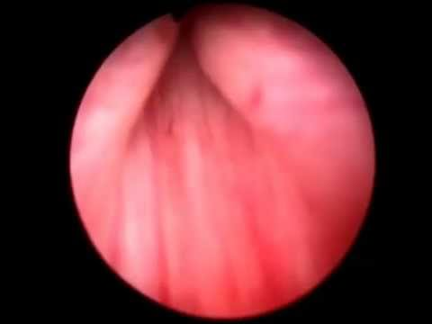 Video Cystoscopic appereance of the prostate download in MP3, 3GP, MP4, WEBM, AVI, FLV January 2017
