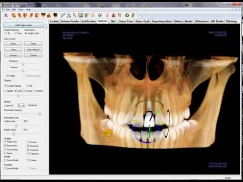 3D Restoration Planning with the Invivo5 Software