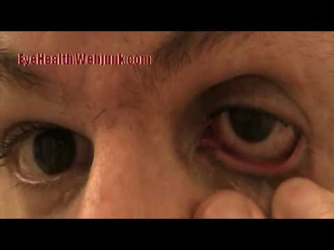 comment appliquer erythromycine