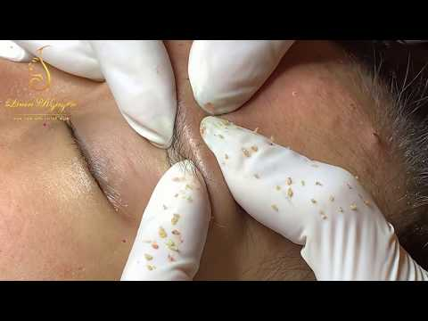 STRANGER THINGS_blackheads. Many people will enjoy it (17) | Loan Nguyen