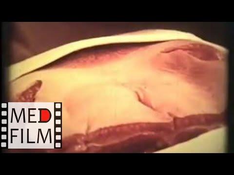 Операция паховой грыжи. Академик Кованов В.В. © Inguinаl Неrniа Ореrатiоn Асаdемiсiаn V. Коvаnоv - DomaVideo.Ru