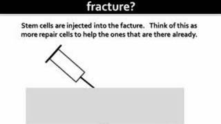 Fracture Non Union Stem Cell Therapy