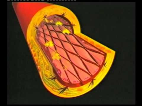 Instructional Video – Cardiovascular disease