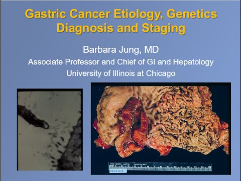 Gastric Cancer Etiology, Genetics, Diagnosis and Staging