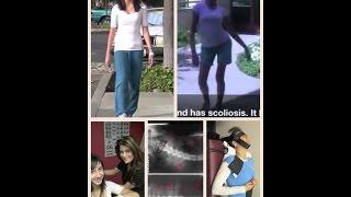 علاج حالات اعوجاج العمود الفقري(الظهر) بدون جراحه Scoliosis