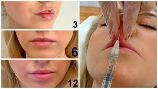Увеличиваем губы и смотрим результаты: Сразу/Через 3 дня/Через 12 дней