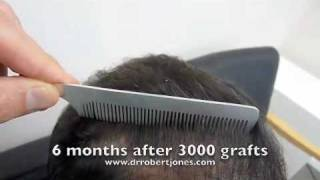Video 3000 graft hair transplant before and 6 months after MP3, 3GP, MP4, WEBM, AVI, FLV September 2018