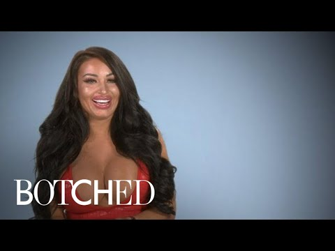 Ava Van Rose Works Her Irish Charm on Dr. Nassif | Botched | E!
