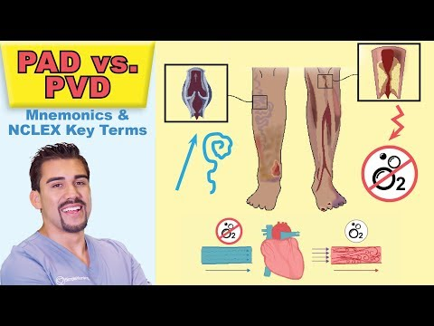 Peripheral Arterial Disease   Top Tested Signs & Symptoms For Peripheral Vascular Pad Vs  Pvd   Memo