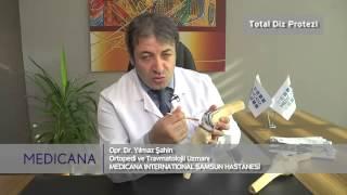 Medicana International Samsun Hastanesi Op. Dr. Yılmaz Şahin Konu: Total Diz Protezi