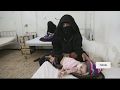 War-torn Yemen sinks deeper into humanitarian crisis