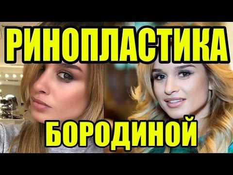 РИНОПЛАСТИКА БОРОДИНОЙ! НОВОСТИ 05.05.2017