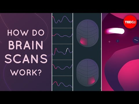 This is How Brain Scans Work