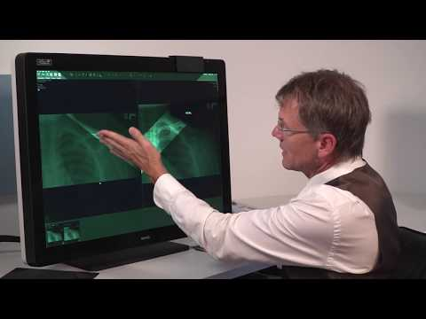 13 - SpotView™ touchpad controls - Intuitive workflow tools for medical displays