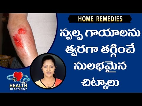 Home Remedies For Minor Wounds || Health Science Telugu || Treat Minor Wounds At Home