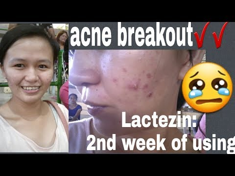 LACTEZIN WEEK 2 |best Acne Pill