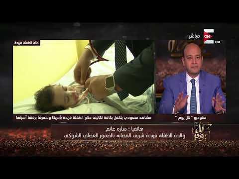 العرب اليوم - شاهد: بكاء والدة الطفلة فريدة بعد التبرع بتكاليف علاجها