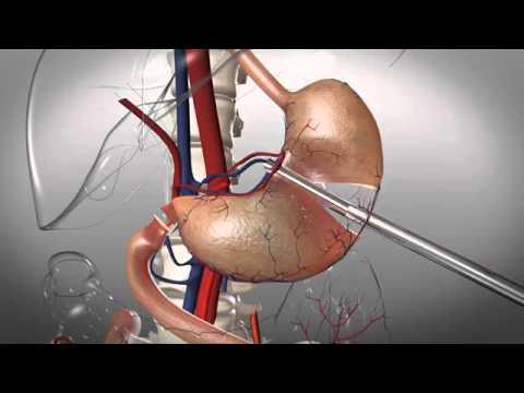 Лечение рака желудка в Израиле. Операция гастрэктомия