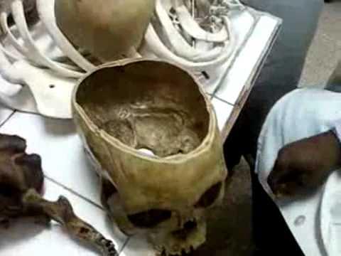 Huesos del cráneo - generalidades