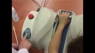Bonage -מכאניזם למכשיר למדידת גיל העצם עבור Sunlight Medical
