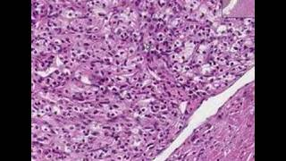 Histopathology Kidney--Renal cell carcinoma
